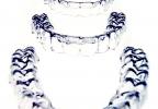 Orthoclear